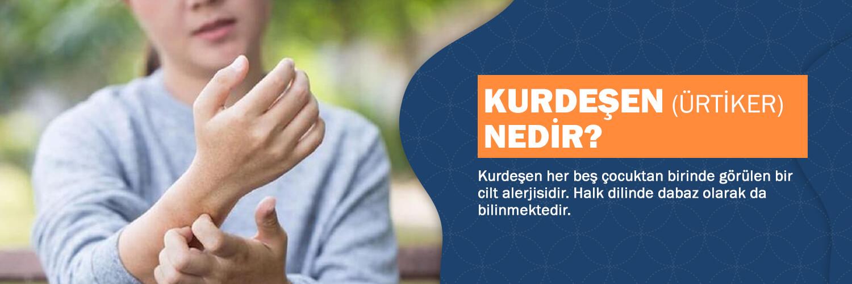 Anasayfa, Kurdeşen (Ürtiker, Dabaz) Teşhis ve Çözümleri Hakkında Herşey